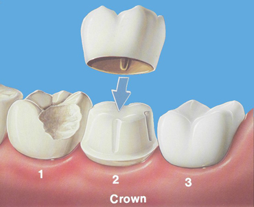 implant teeth